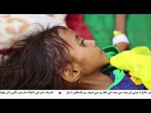 [27Mar2018] امریکا اور مغرب کے ہتھیار یمنی عوام کے قتل عام کا باعث - Urdu