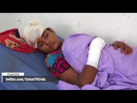 [120APR2018] یمن کی دفاعی توانائی- Urdu