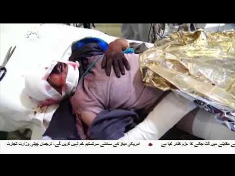 [01Sep2018] یمن میں آل سعود حکومت کی جیوانیت کا سلسلہ جاری- Urdu
