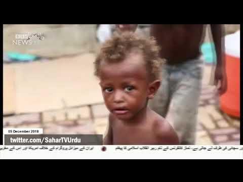 [05Dec2018] جنگ یمن اور امریکہ و سعودی عرب کی ڈھٹائی  -Urdu