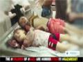 THE Children Of Gaza Are Underttack Gazaresist - English