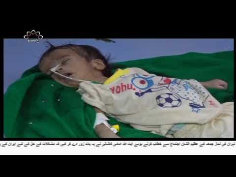 [12Oct2018] سعودی حکومت یمنی بچوں کی قاتل- Urdu